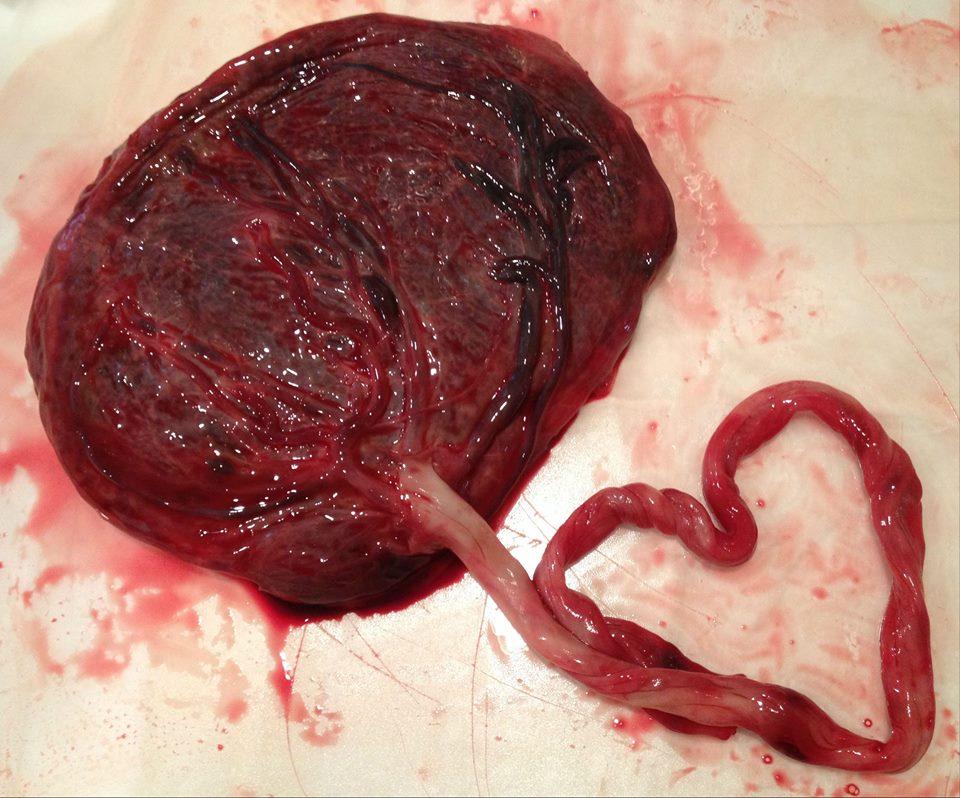 placentaheart